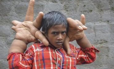 El sufrimiento de un nene en india
