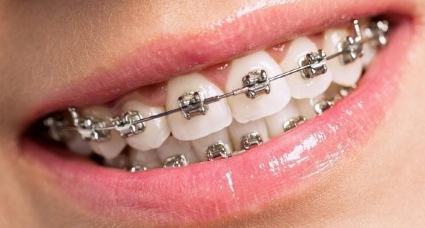 Investigadores argentinos desarrollan una ortodoncia que disminuye el tratamiento